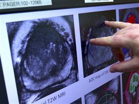 B-Roll: MRI Targeted Biopsy is Better for Detecting High-Risk Prostate Cancer