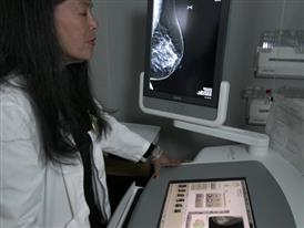 Edited Package: New Guideline Recommends Later Age for First Screening Mammogram for Women with Average Breast Cancer
