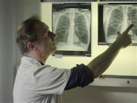 Edited Package: New Procedure Helps Patients with Severe Emphysema