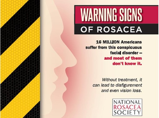 Warning Signs of Rosacea