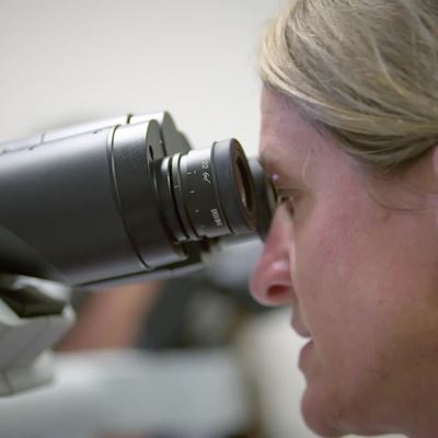 Beating Cancer Begins with Targeted Therapy