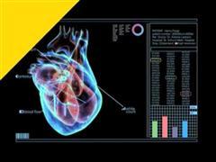IBM Scientists Reinvent Medical Diagnostic Testing