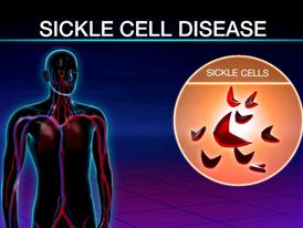 Two Therapies To Treat Sickle Cell Disease Are Underutilized (Short Version)